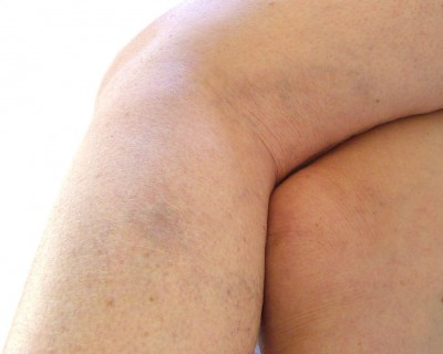 After Thread Vein Removal photo