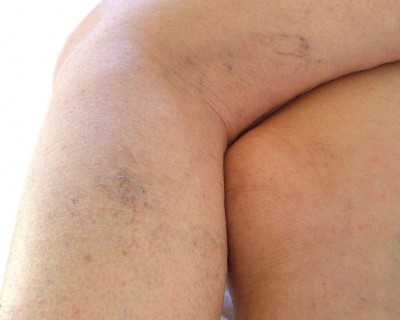 Before Thread Vein Removal photo