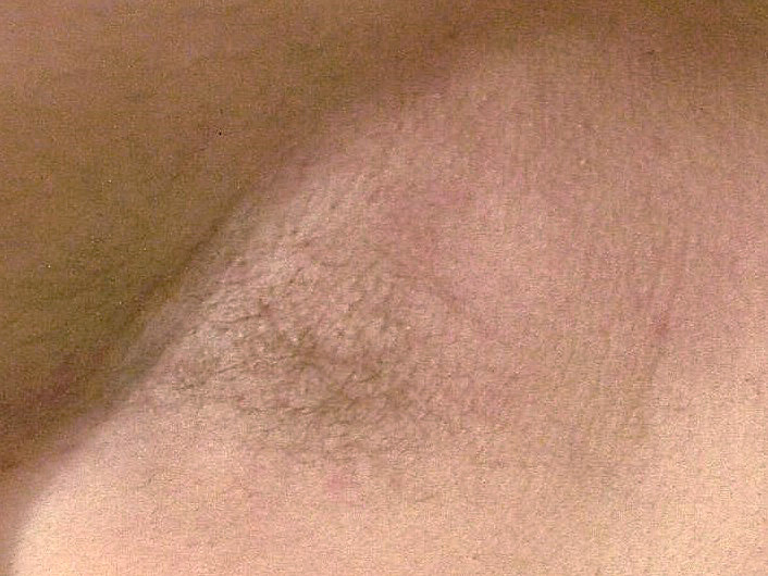 After Skin Tag Removal photo