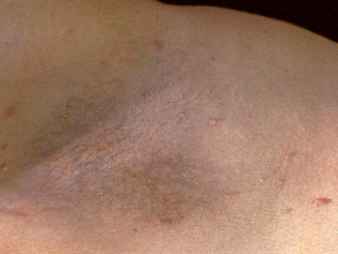 Before Skin Tag Removal photo